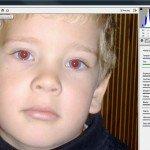 Vörös-szem effektus